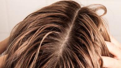 Yağlı Saçlara Sahip Olanlar İçin Kişisel Tavsiyeler